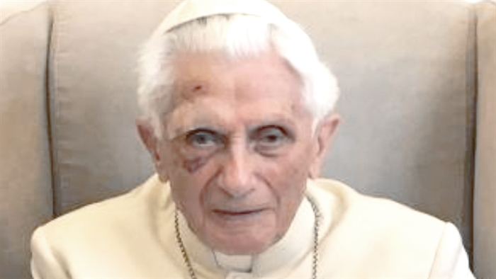 It is Talmudic, to say that Benedict XVI is not the pope